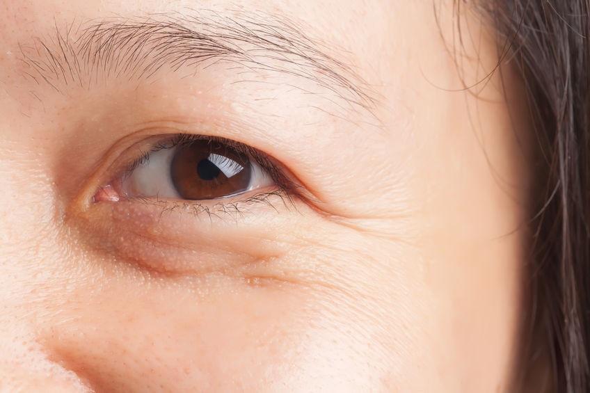 Nguyên nhân xuất hiện nếp nhăn ở vùng mắt - ảnh: internet
